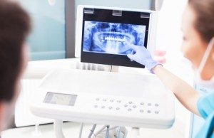 teeth cleaning arlington va 1