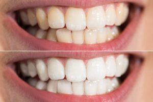 teeth whitening arlington va-cosmetic dentistry