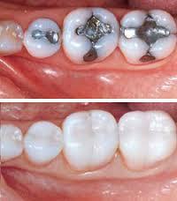 white cavity fillings
