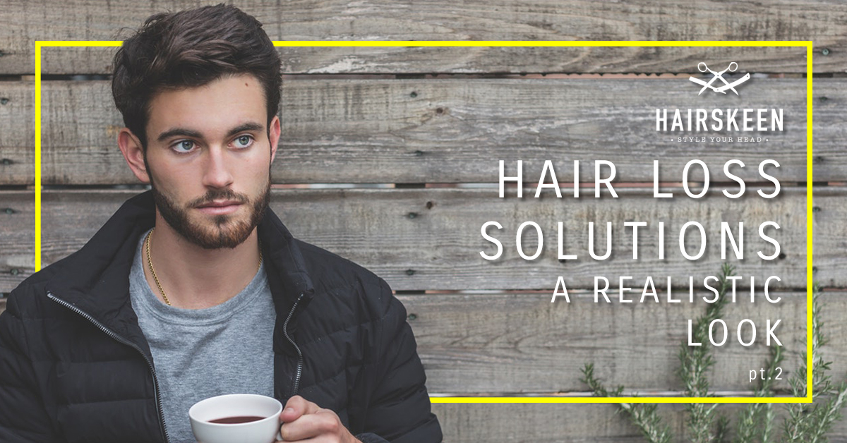 Hair Replacement For Men: Hair Loss Solutions: A Realistic Look, Pt 2
