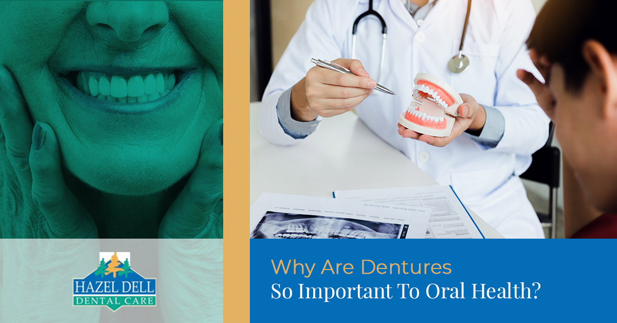 Why Are Dentures So Important To Oral Health
