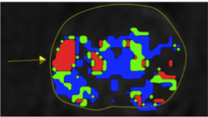 Prostate MRI Image