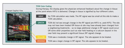 Tissue Change Monitoring (TCM)- Sonablate HIFU