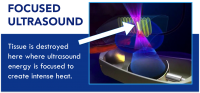 Focused Ultrasound is non-invasive, radiation free and can destroy cancer
