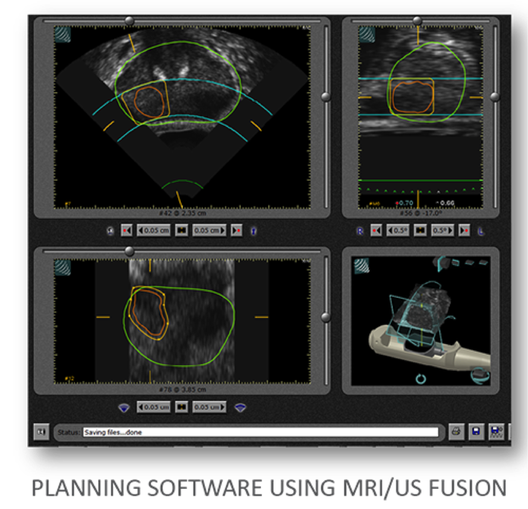 Sonablate HIFU MRI fusion-screenshot