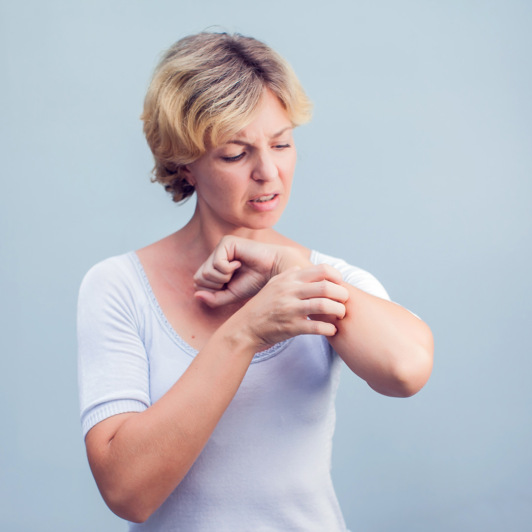 Woman itching her arm with an annoyed look on her face.