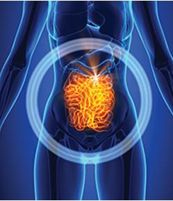 Crohn S Disease Florida Acid Reflux Florida Ulcerative Colitis