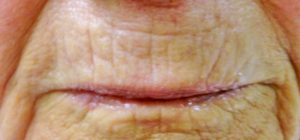 after-lip-lines-one-treatment-spectacular-skin-1024x479