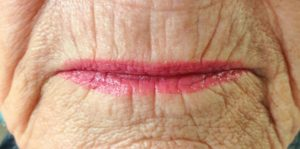 before-lip-lines-spectacular-skin-1024x510