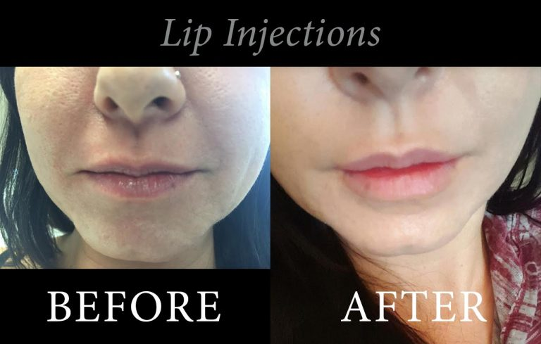 lip-injection-before-and-after-1-768x489