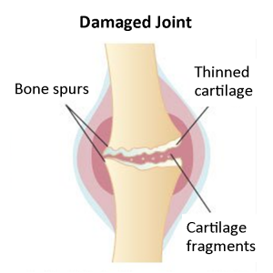 damaged joint capsule graphic