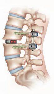 foraminal-stenosis3