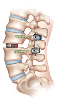 MIS-TLIF-Spinal-Fusion