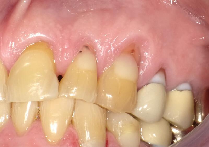 before gum grafts
