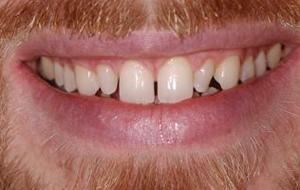 Chris-J.-Before-Smile3