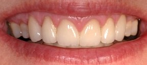 Cosmetic-Dentist-Lawrence-KD-A13
