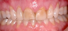 Cosmetic-Dentist-Lawrence-KS-B13
