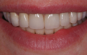 Get the smile you've always wanted with our dentist in Lawrence!