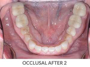 Occlusal After 2