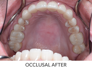Occlusal After