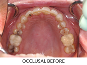 Occlusal Before