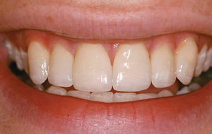 Our dentist can help you reinvent your smile.