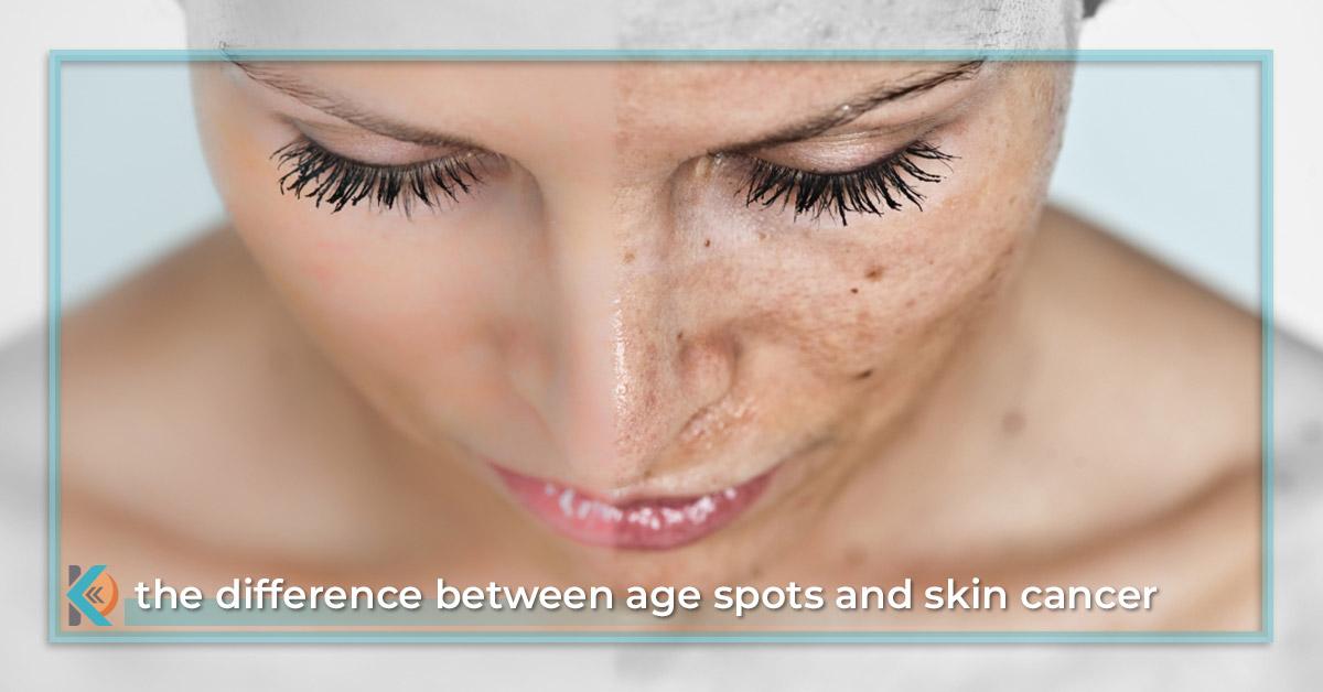 Adult acne vitamins