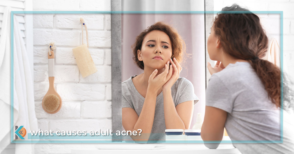 What Causes Adult Acne? - Make an appointment with our