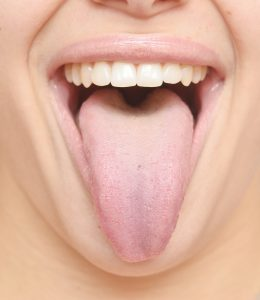 Dentist Austin TX - Saliva May Detect Cancer