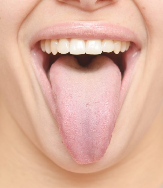 Dentists love oral burn relief strip
