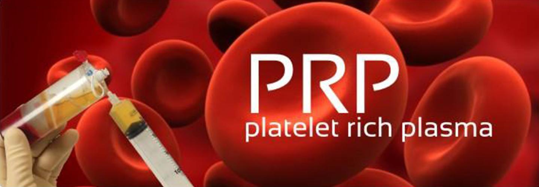 platelet-rich-plasma-prp