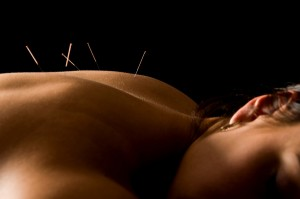Acupuncture | LIV Integrative Health