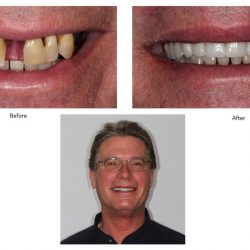 Before and After Partial Denture