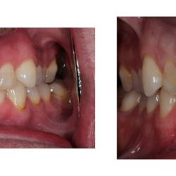 Before and After of Fixed Teeth