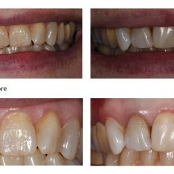 Before and After of Dental Composites