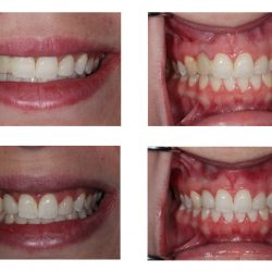 Before and After of Cosmetic Dental Care