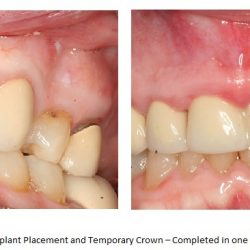 Before and After of Temporary Crown
