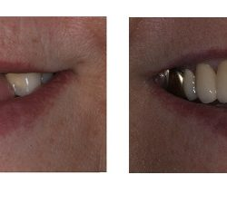 Before and After of Tooth Implant