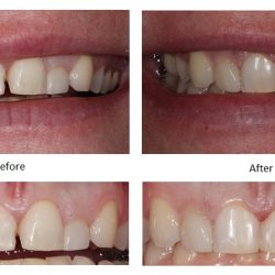 Before and After Dental Composites