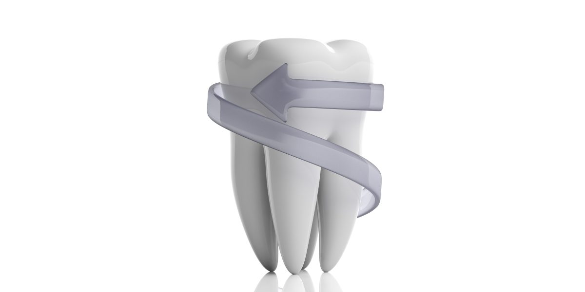 Tooth Sealant Graphic
