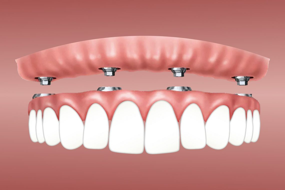 Dental Implants Menlo Park - Everything You Need To Know