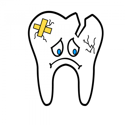 What Happens If Broken Tooth Goes Untreated