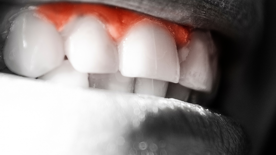 Bleeding Gums: Everything You Need To Know