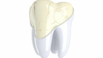 What Are The Causes Of A Cracked Tooth?