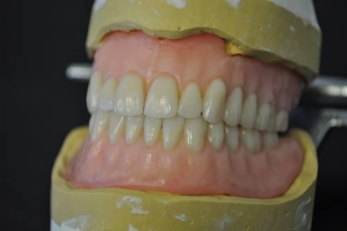Custom dentures at McCall Denture.