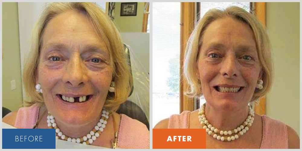 Patient at McCall Denture who received dentures.
