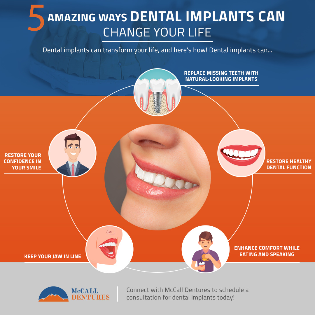 Amazing Ways Dental Implants Can Change Your Life infographic