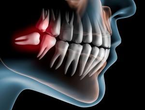 oral-maxillofacial-2-300x228