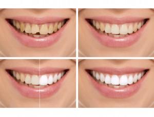 smile-makeover-2-300x228