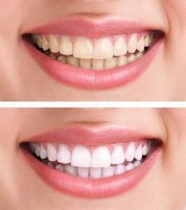 teeth-whitening-21-266x300